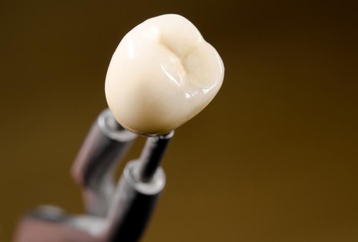 As próteses podem imitar perfeitamente um dente natural: a cor, a textura e ranhuras são praticamente iguais