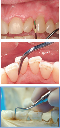 Fase-mantenimiento-periodental1.jpg