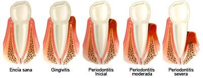 Periodontitis-2.jpg