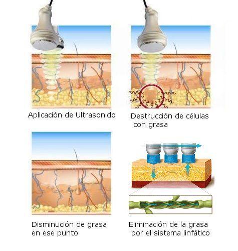esquema de cavitación