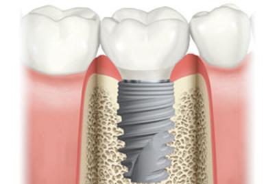 人工植牙手術詳細過程是什麼?補骨與補肉會影響手術內容嗎?|豐采美學牙醫診所