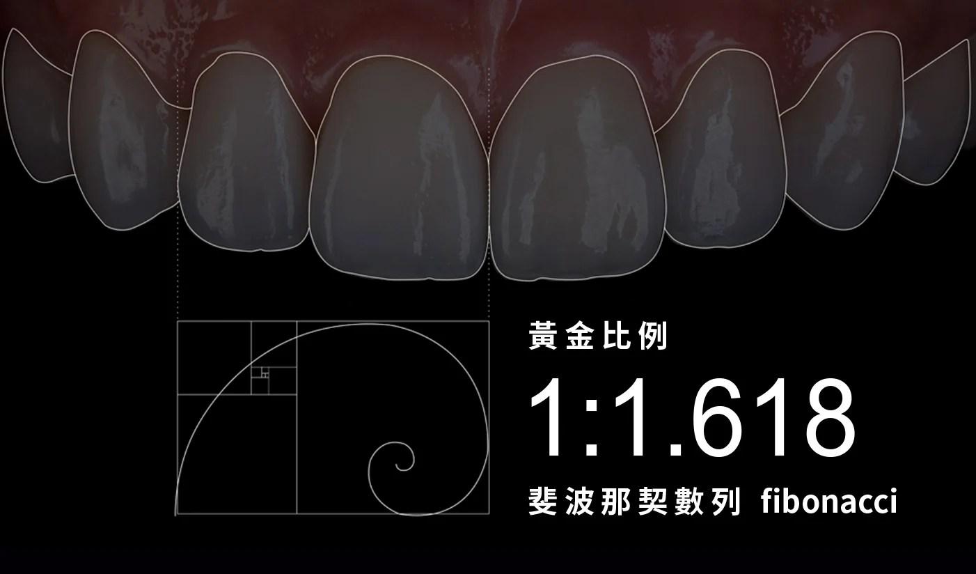 顯微瓷牙貼片 | 高仿真極致美學・數位微笑設計|豐采美學牙醫診所