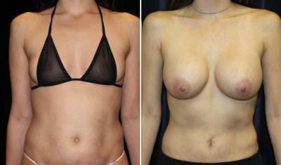 Tummy Tuck - Breast Augmentation