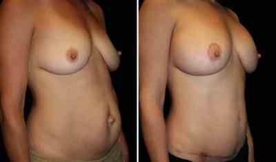 Tummy Tuck - Breast Augmentation Mastopexy 350cc