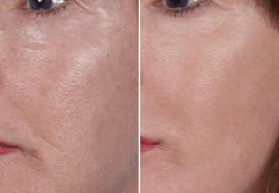 Nano Laser Peel Dallas  - Medspa and Laser Center | Clinique Dallas