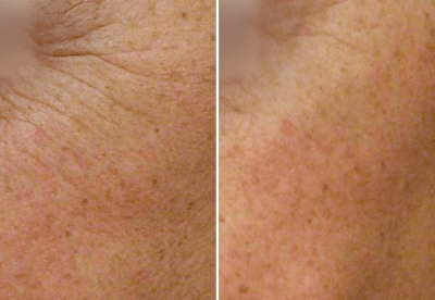 Nano Laser Peel Dallas 3 - Medspa and Laser Center | Clinique Dallas