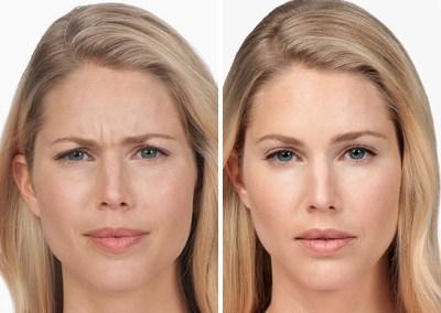 Dallas Botox Cosmetic slide2 | Clinique Dallas Plastic Surgery, Medspa and Laser Center