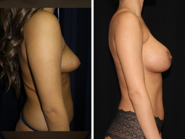 liposuction-liposuccion 3