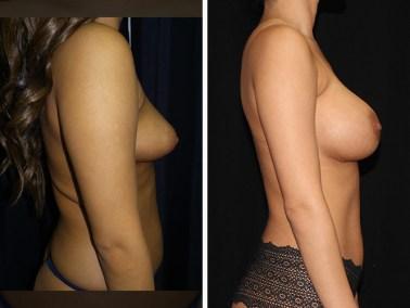 liposuction-liposuccion 3