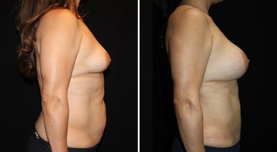 Abdominoplasty | Liposuction to Abdomen/Flanks | Breast Augmentation 400cc
