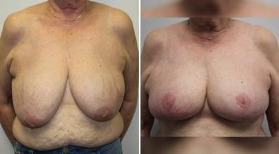 Oncoplastic Surgery