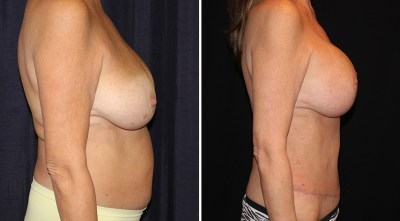 Abdominoplasty | Liposuction to Abdomen/Flanks | Breast Augmentation Mastopexy 350cc