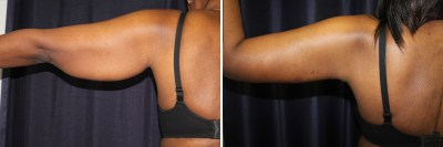 Dallas Arm Lift / Brachioplasty - Plastic Surgery | Clinique Dallas
