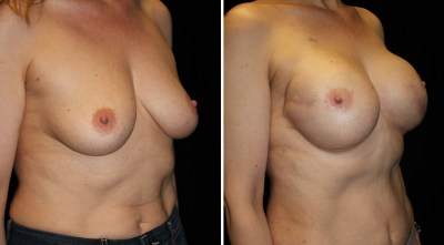 Tissue Expander | Breast Reconstruction Clinique Dallas