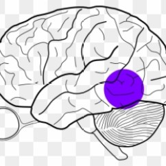 Easy Brain Diagram Wiring For Switch And Two Lights Posterior Temporal Lobe Mass Clip Art Human