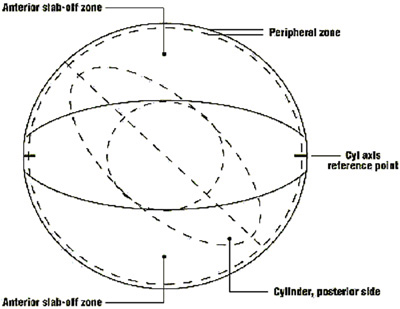 Soft toric contact lens fitting pdf