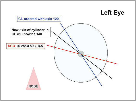 Contact Lens Spectrum - A NEW ANGLE ON SOFT TORIC LENSES