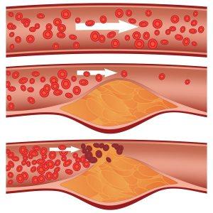 desenvolvimento da aterosclerose