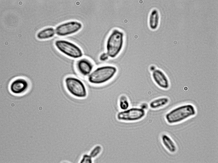 Brettanomyces bruxellensis 1000x