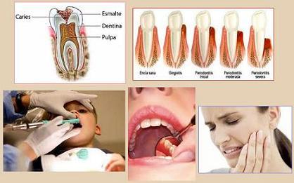Las caries una barrera para la salud bucal