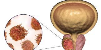 Cancerul de prostată