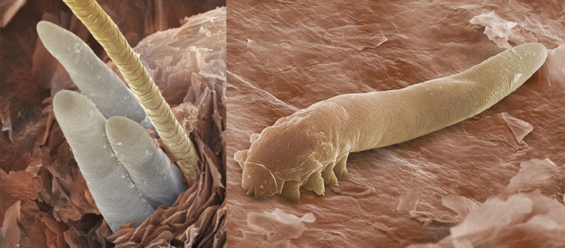 Acari delle ciglia Demodex folliculorum