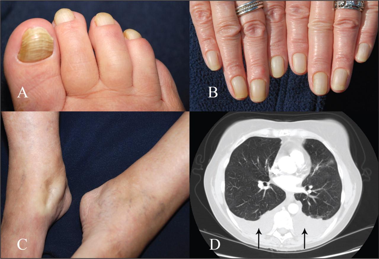 Yellow Nail Syndrome CMAJ