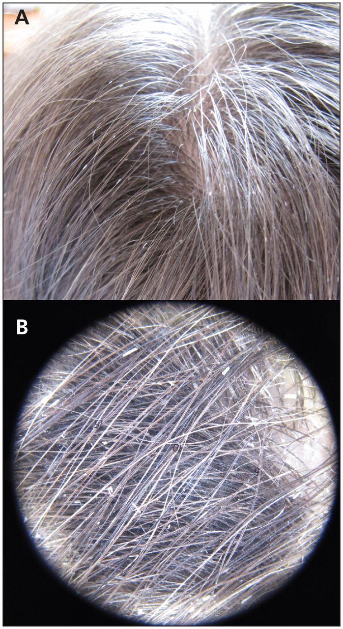 Hair Casts Pseudonits Cmaj