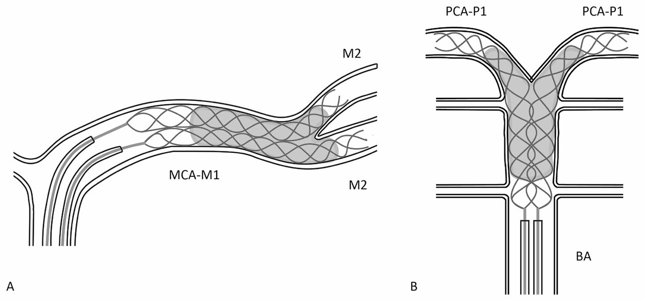 Dual-stent retrieval for mechanical thrombectomy of
