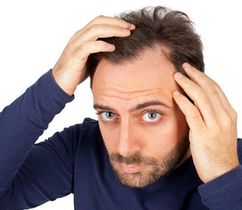 Hair Loss Thinning Hair & Baldness Treatment in Essex ...