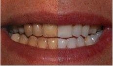 sbiancamento denti milano