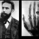 Rontgen, Hounsfield and the History of Radiology
