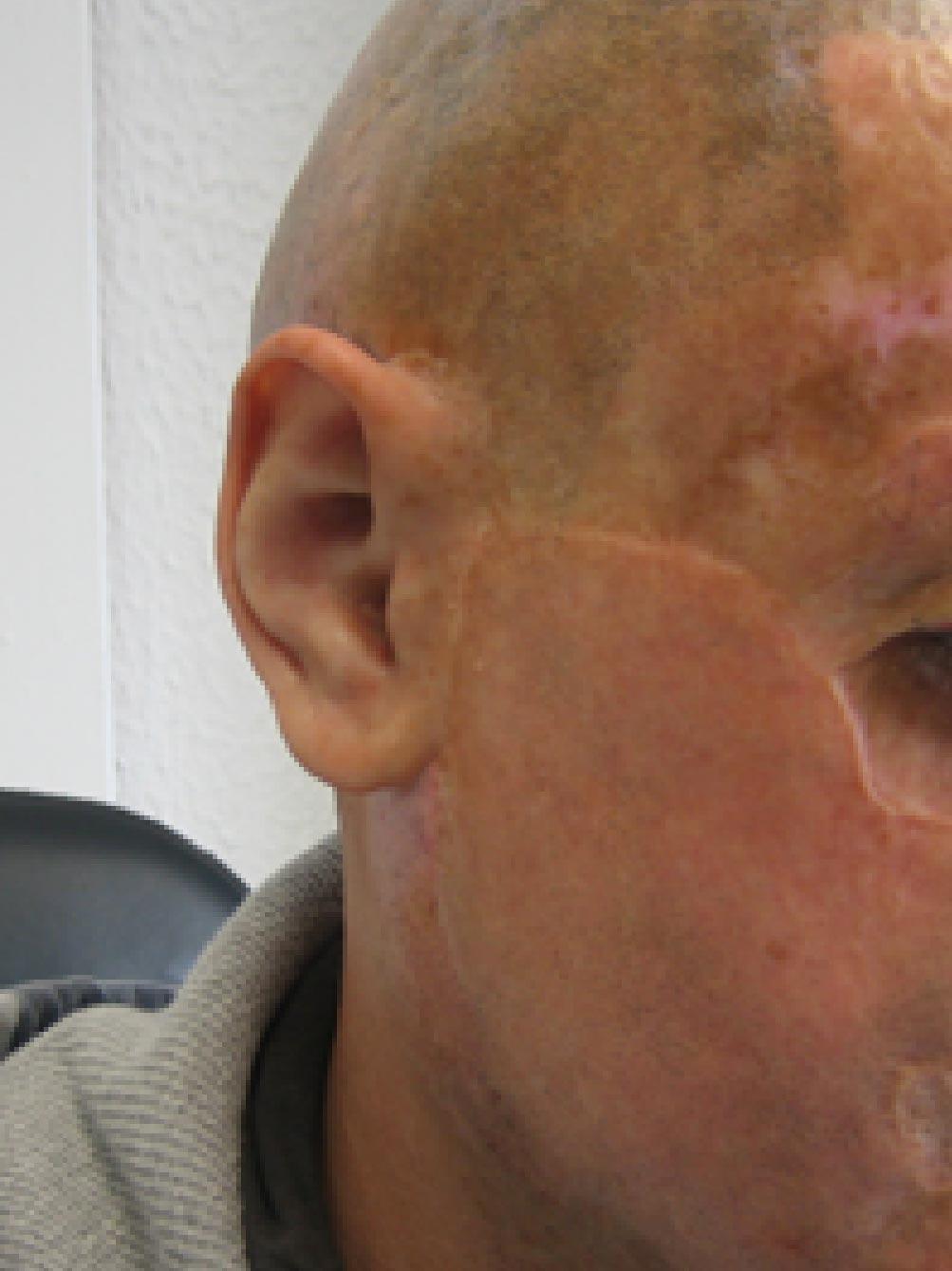 Facial Prosthetics - Case Studies - CM Prosthetics