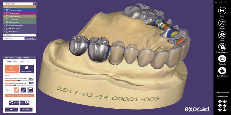 Exocad CAD CAM software