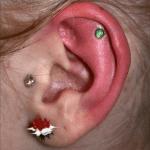 von Piercing verursachte Entzündung