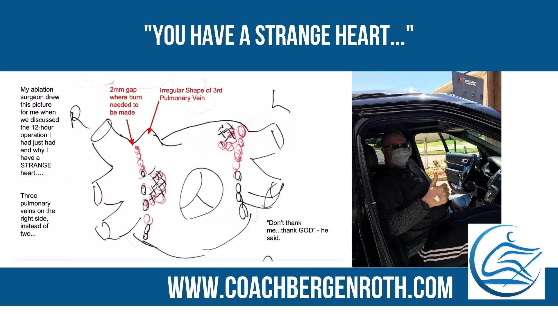 coach bergenroth ablation surgery