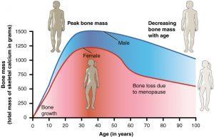 healing,fractured,bones