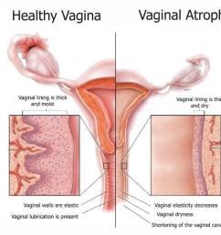 healthy vagina vs vaginal atrophy [ 1000 x 814 Pixel ]