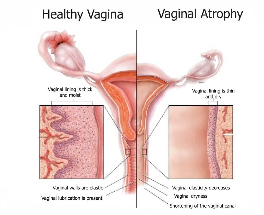 hight resolution of healthy vagina vs vaginal atrophy