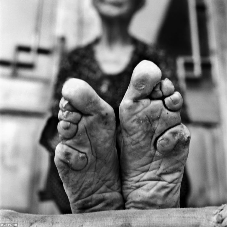 chinese footbinding was extremely painful