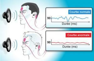 Les Potentiels évoqués auditifs (PEA)