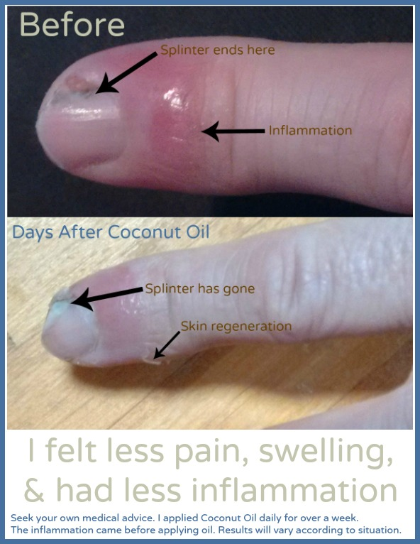 Dip Skin In Coconut Oil Finger Nail Splinter Before and After