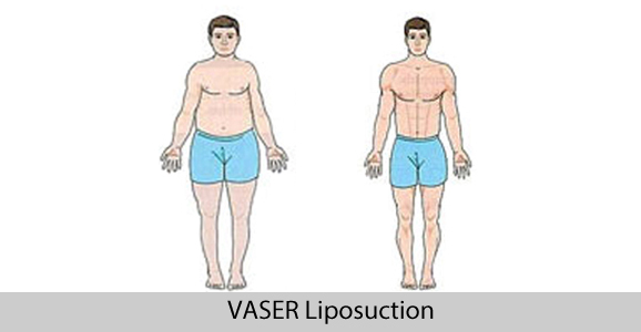 Vaser High Definition Liposuction