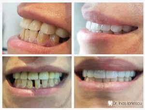 Veneers with Implants