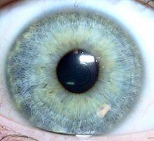 tache noire dans les yeux