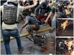Caracas Giovane bruciato