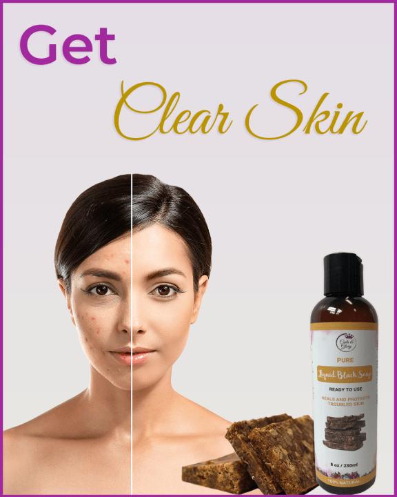 benefits of black soap