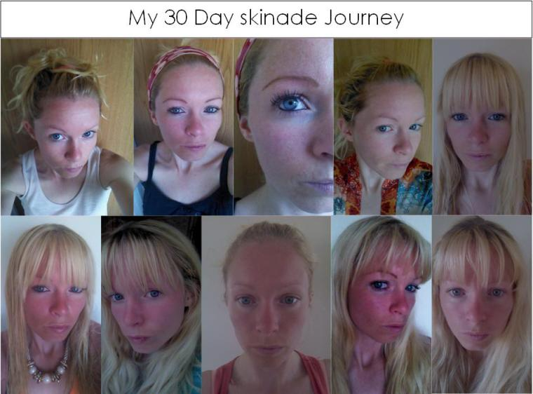 my 30 day skinade journey