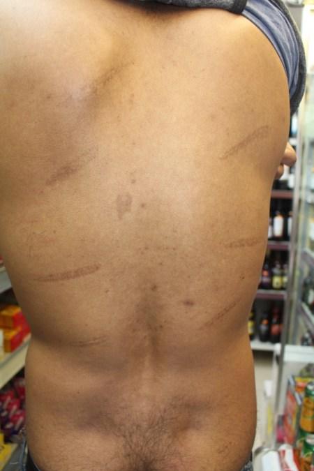 File photo| Sri Lankan Tamil Torture Victim - Photo by Uvindu Kurukulasuriya