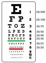 Colorblind Person Taking a Visual Acuity Test